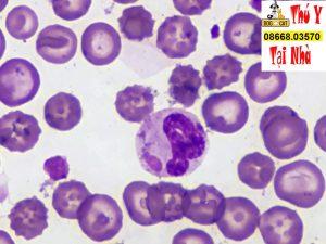 hình ảnh virus gây bệnh care ở chó